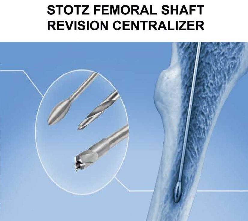Femoral shaft revision centralizer