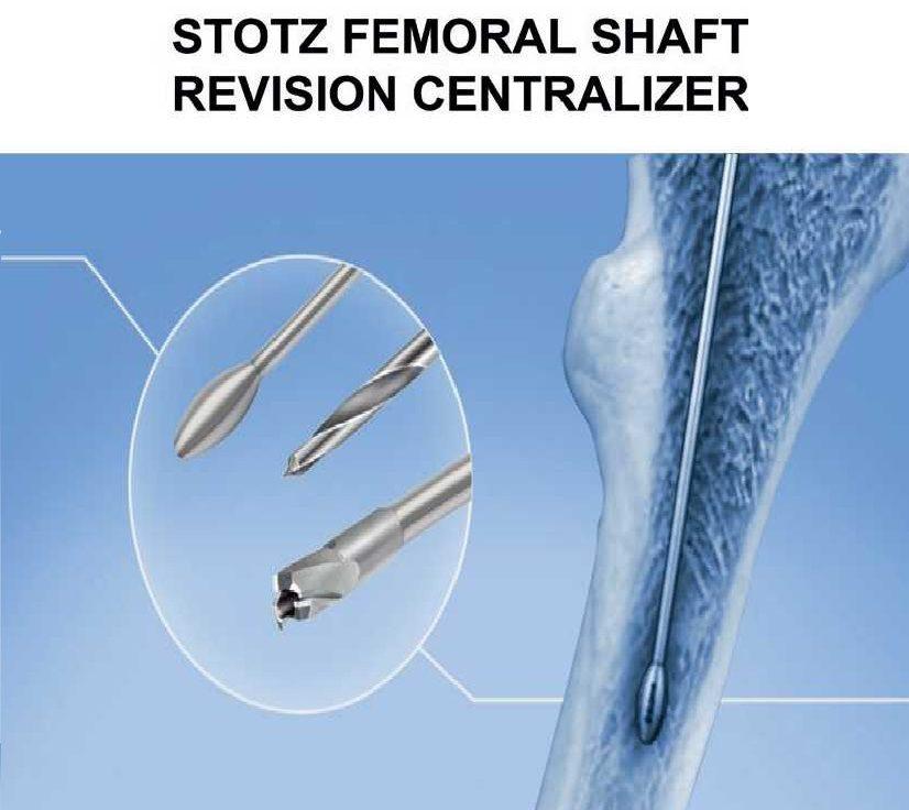 Femoral shaft revision centralizer